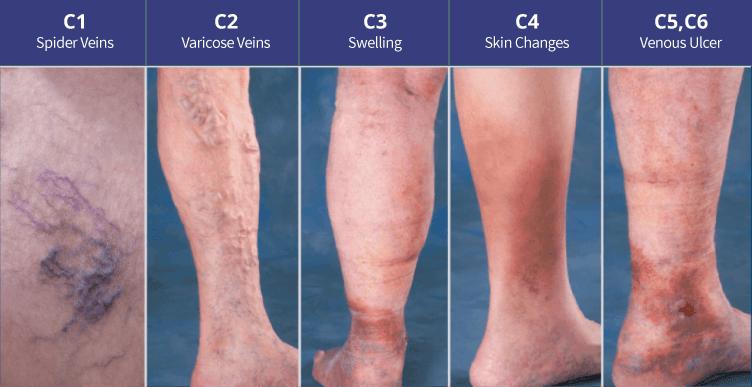 stages chronic venous disease