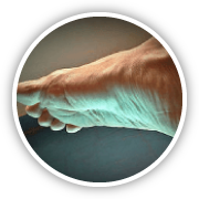 chronic complex wound care
